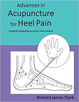 Advances in acupuncture for heel pain towards integrative practice and research Medicine Health Science
